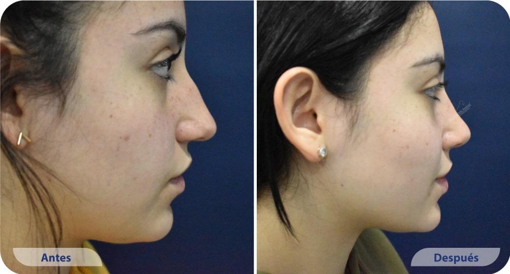 pacientes procedimiento rinoplastia ultrasonica dr mauricio suarez colombia (1)