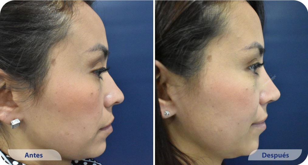 pacientes procedimiento rinoplastia ultrasonica dr mauricio suarez colombia (2)