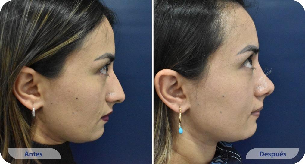 pacientes procedimiento rinoplastia ultrasonica dr mauricio suarez colombia (3)