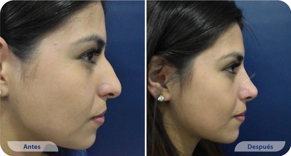 pacientes procedimiento rinoplastia ultrasonica dr mauricio suarez colombia (5)
