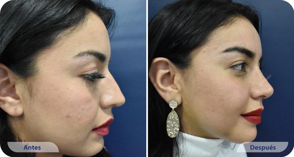 pacientes procedimiento rinoplastia ultrasonica dr mauricio suarez colombia (6)