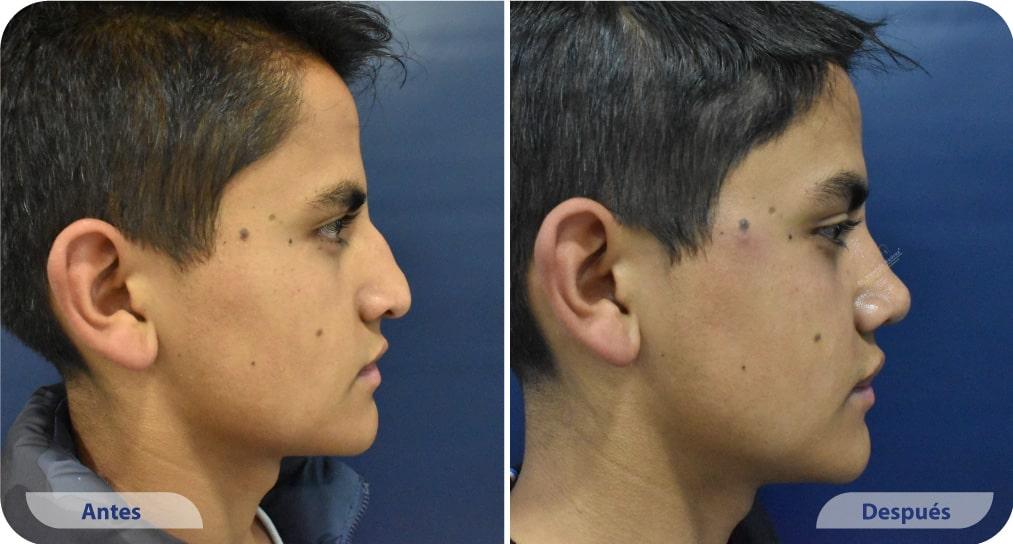pacientes procedimiento rinoplastia ultrasonica dr mauricio suarez colombia (7)