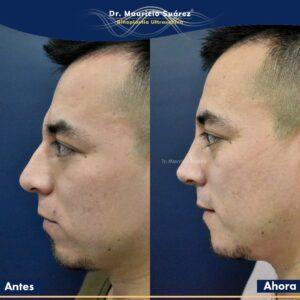 Resultados Rinoplastia o Rinoplastia Ultrasónica Colombia